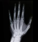 Bones – Hand