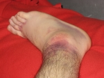 sprained-ankle-sprain-6872471-h