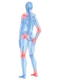 skeleton with arthritis